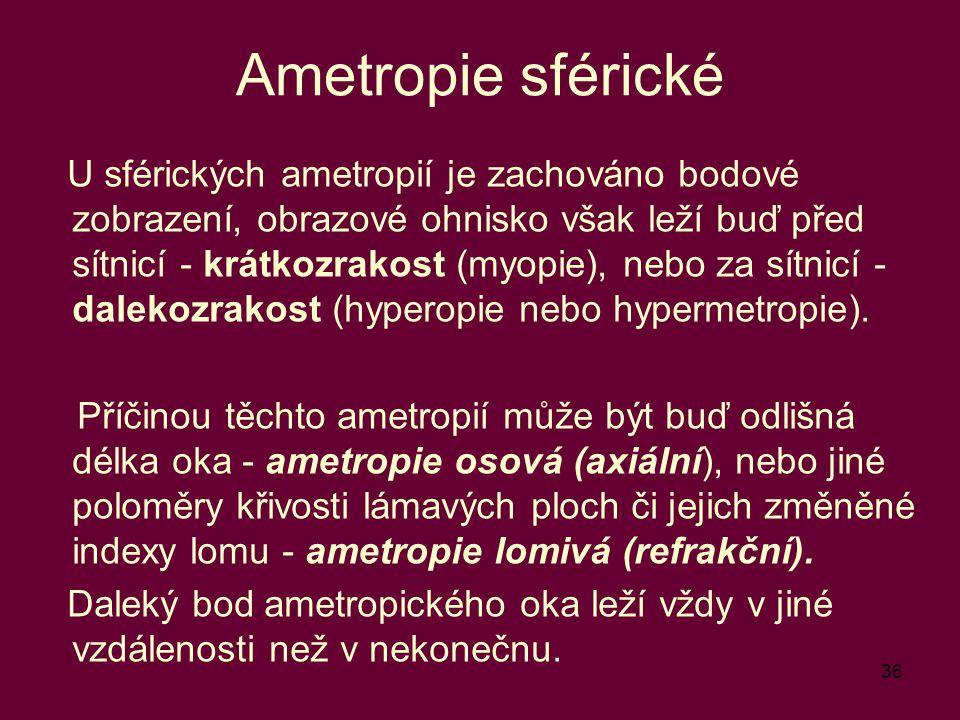 Ametropie sférické