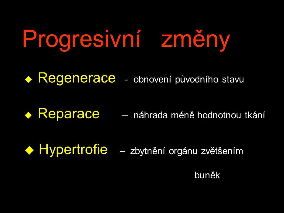 Progresivní změny Hypertrofie – zbytnění orgánu zvětšením buněk