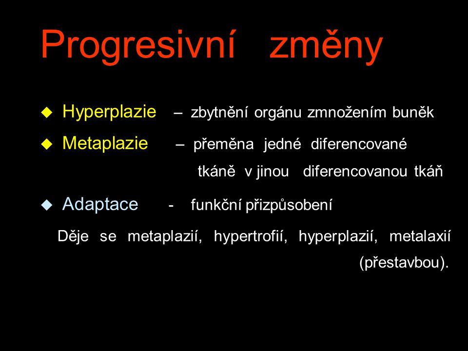 Progresivní změny Hyperplazie – zbytnění orgánu zmnožením buněk