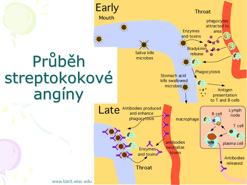 Průběh streptokokové angíny