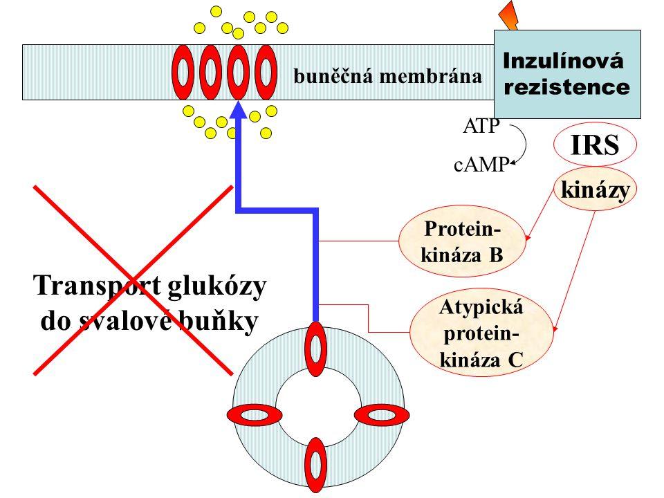 IRS Transport glukózy do svalové buňky