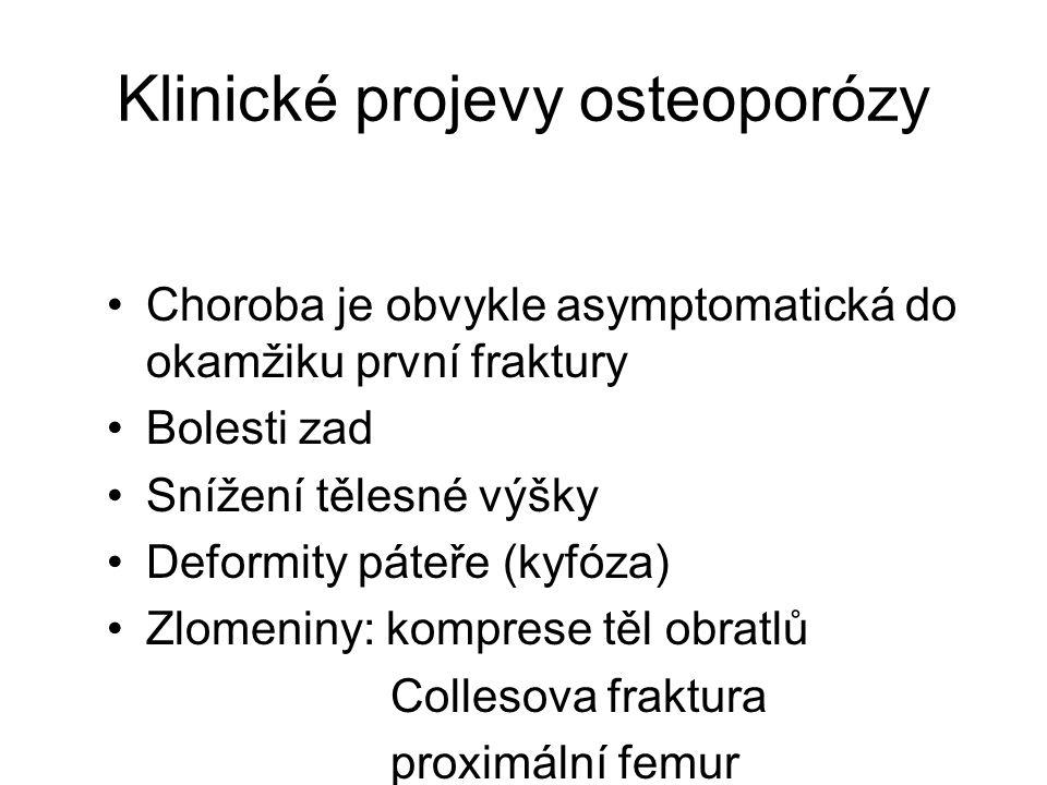Klinické projevy osteoporózy