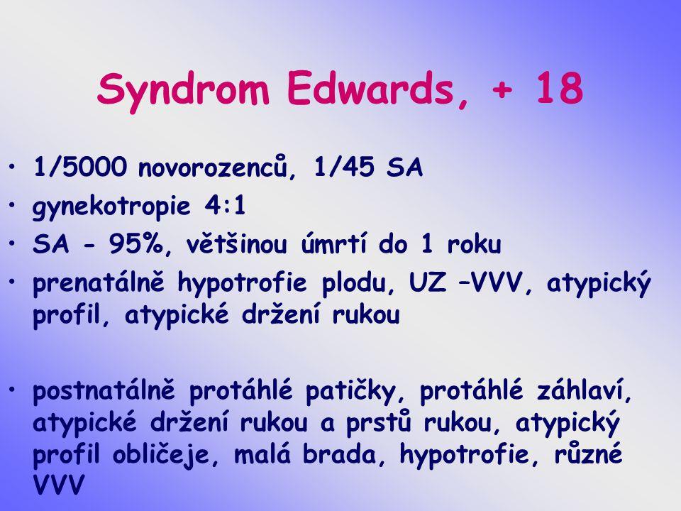 Syndrom Edwards, + 18 1/5000 novorozenců, 1/45 SA gynekotropie 4:1