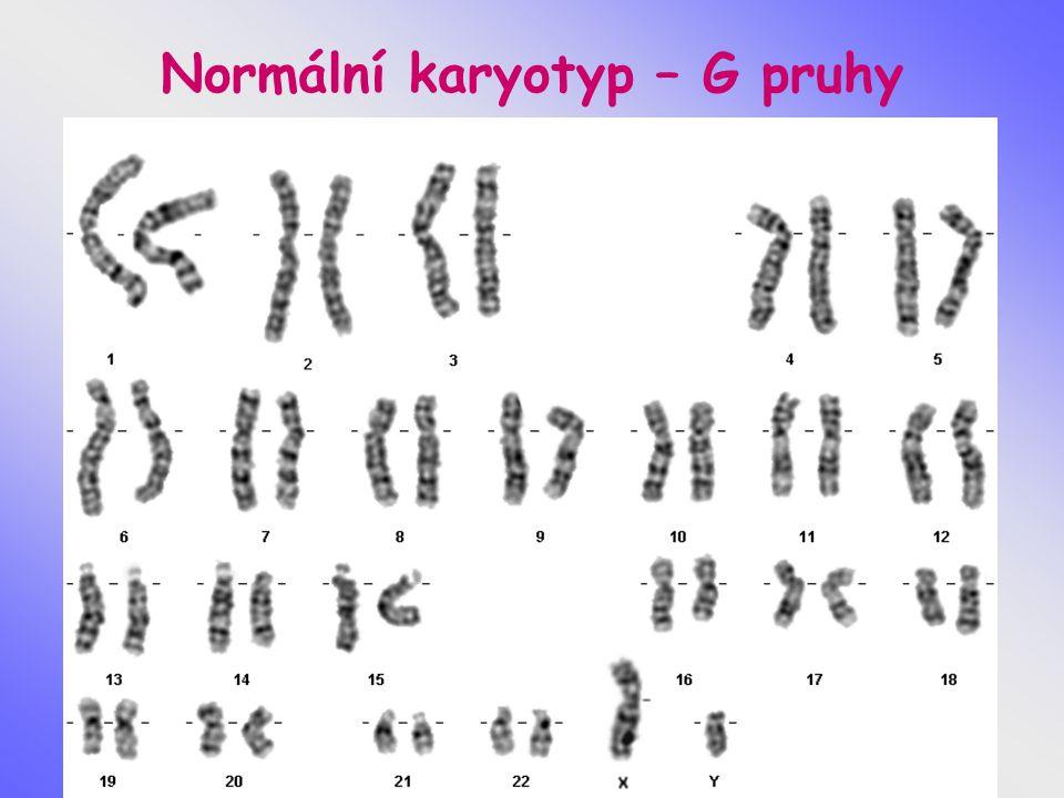 Normální karyotyp – G pruhy