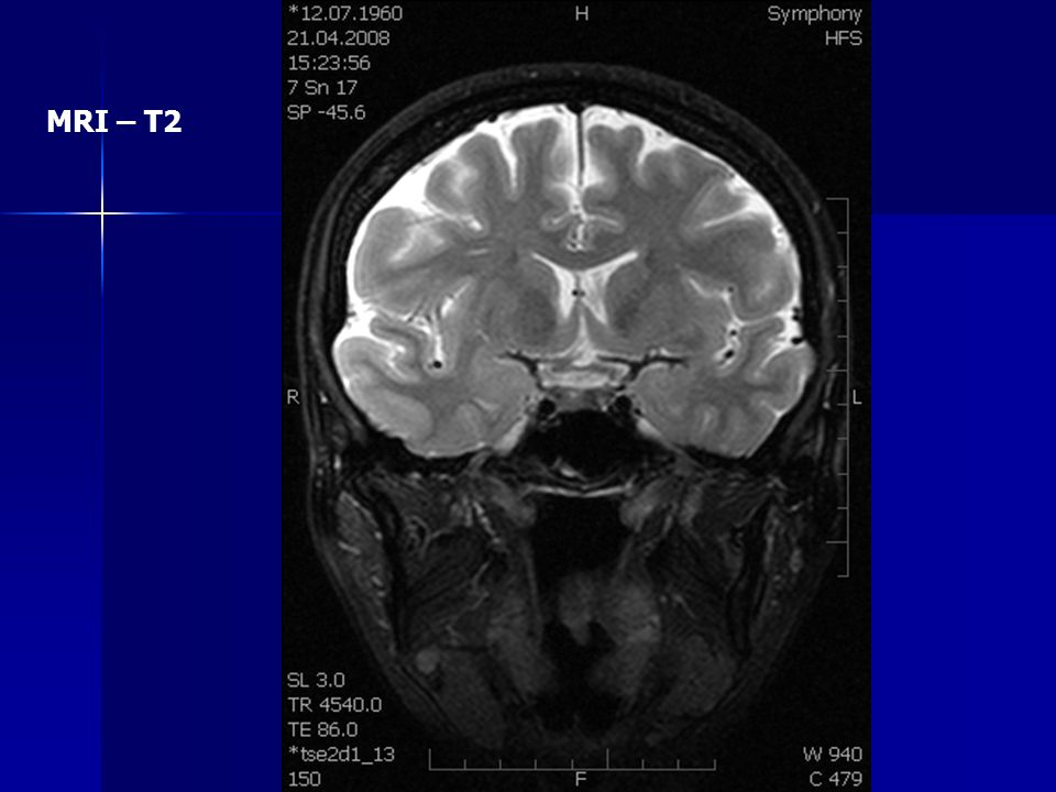MRI – T2
