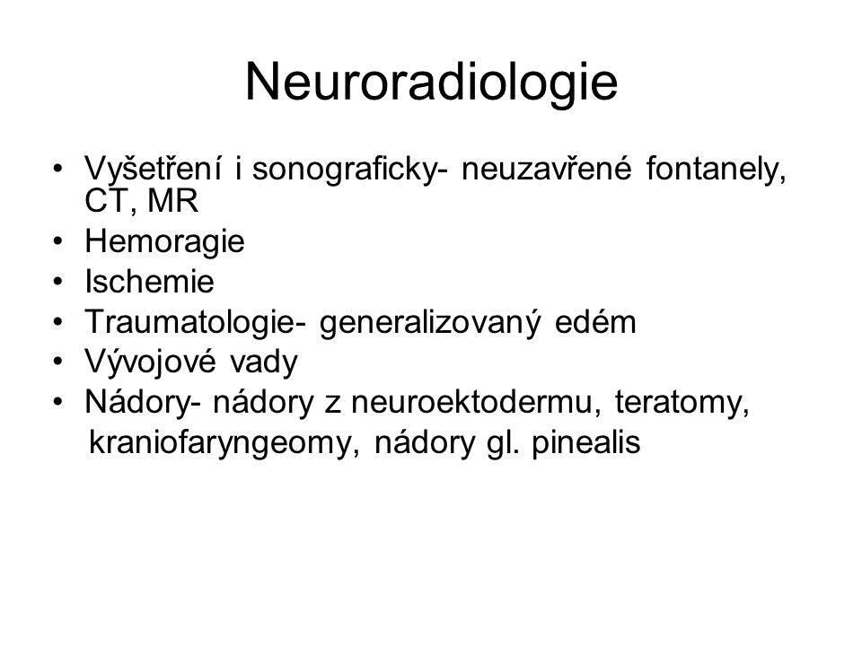 Neuroradiologie Vyšetření i sonograficky- neuzavřené fontanely, CT, MR