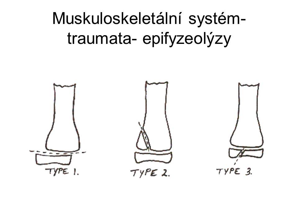 Muskuloskeletální systém- traumata- epifyzeolýzy
