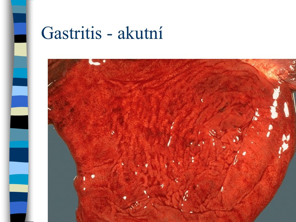 Gastritis - akutní