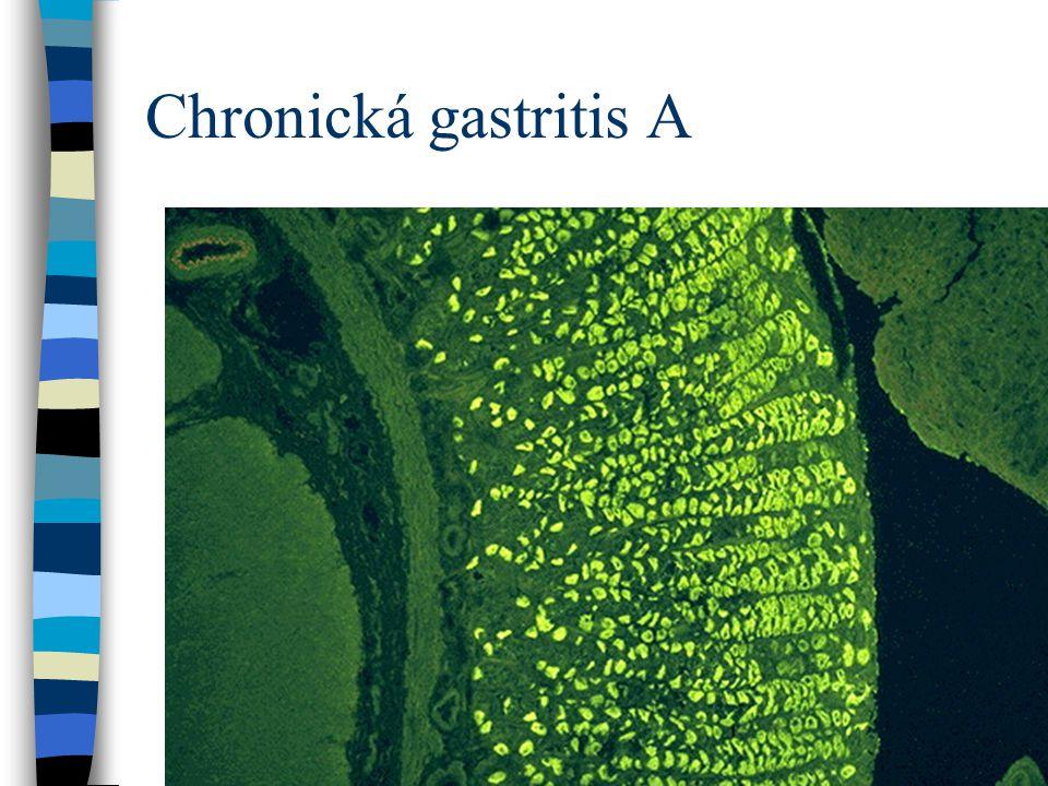 Chronická gastritis A