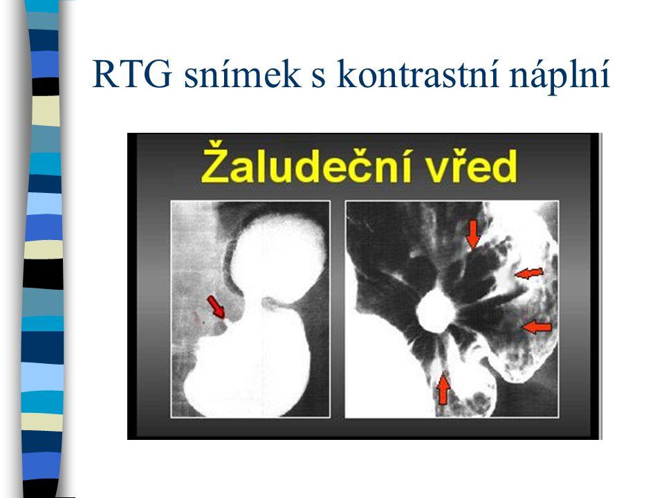 RTG snímek s kontrastní náplní