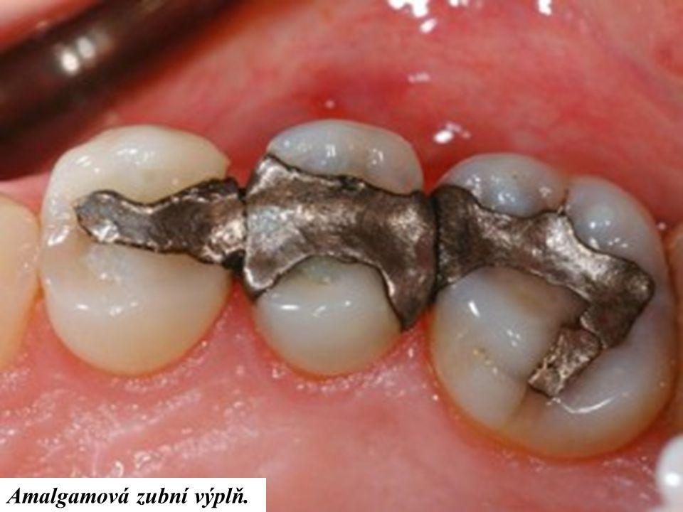 Amalgamová zubní výplň.