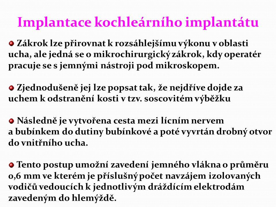 Implantace kochleárního implantátu