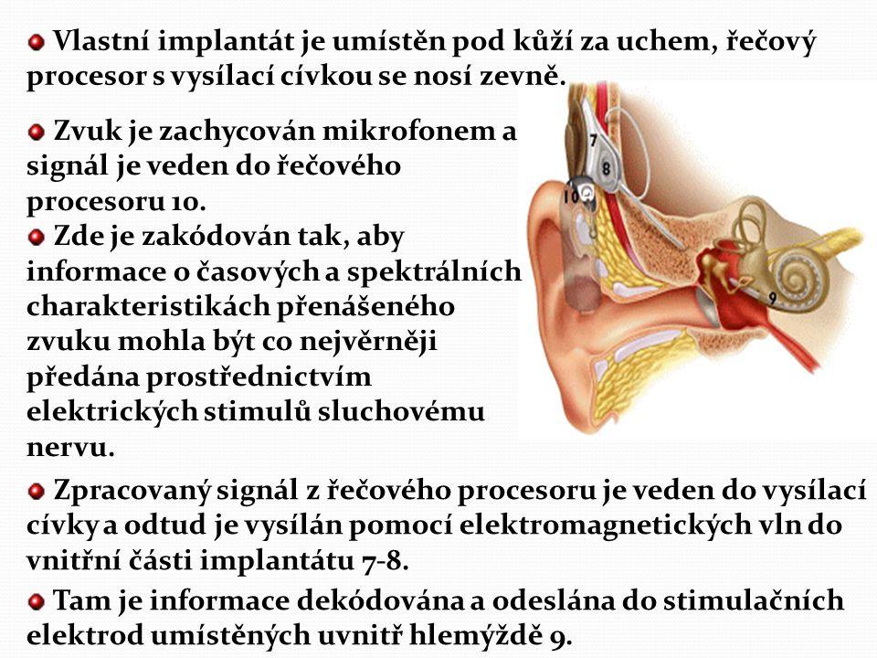 Vlastní implantát je umístěn pod kůží za uchem, řečový procesor s vysílací cívkou se nosí zevně.
