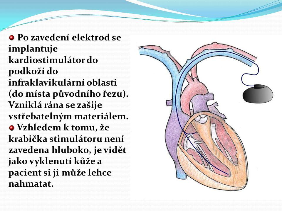 Po zavedení elektrod se implantuje kardiostimulátor do podkoží do infraklavikulární oblasti (do místa původního řezu). Vzniklá rána se zašije vstřebatelným materiálem.