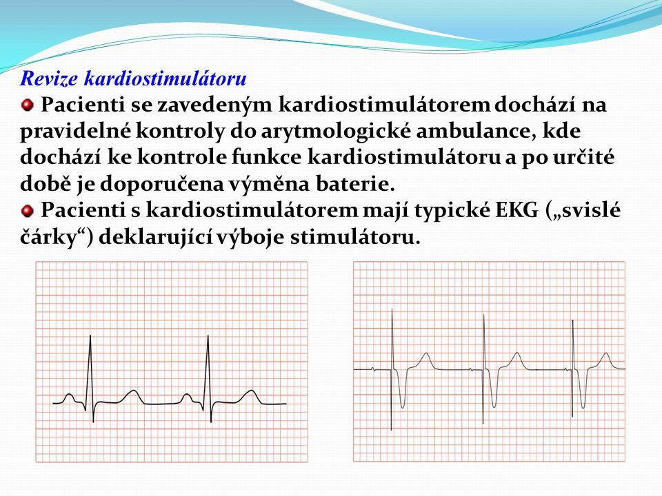 Revize kardiostimulátoru