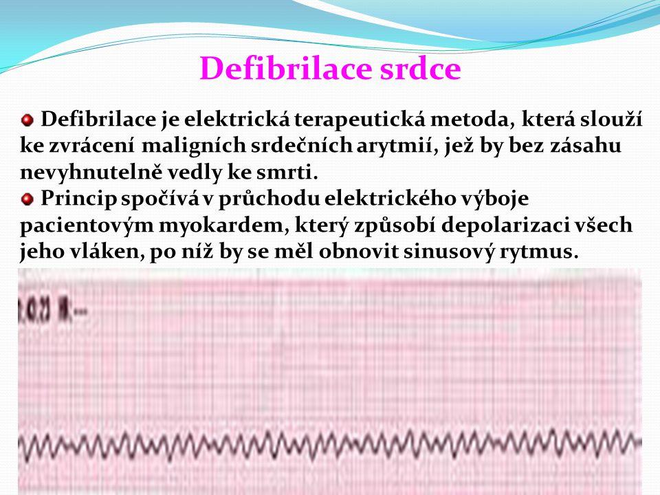 Defibrilace srdce