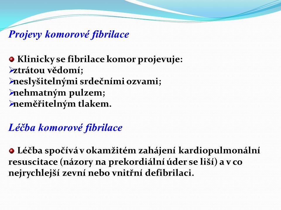 Projevy komorové fibrilace