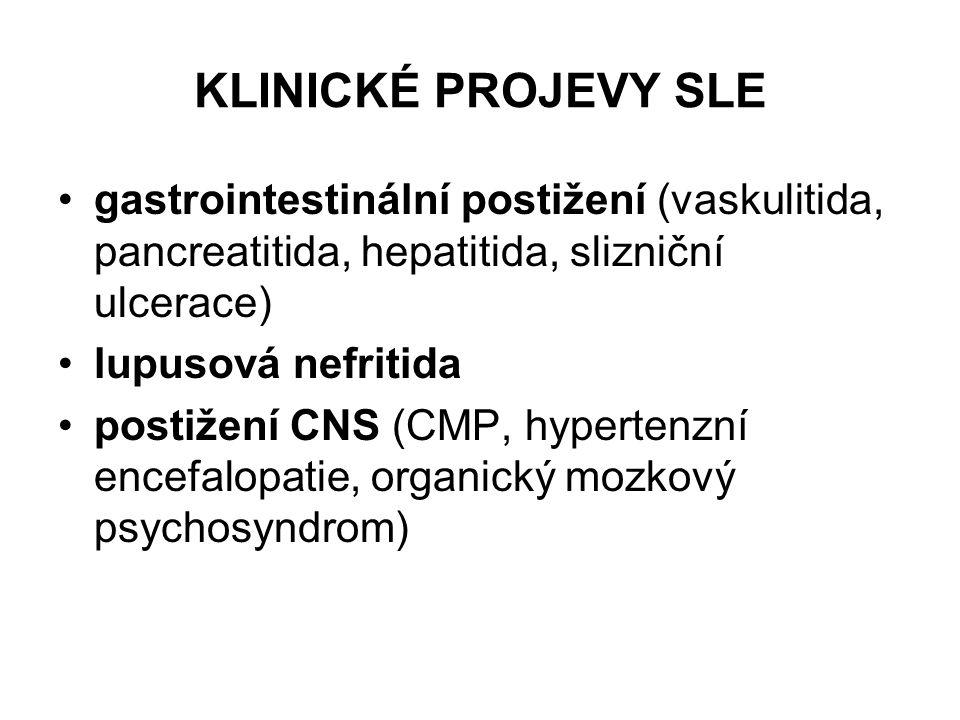 KLINICKÉ PROJEVY SLE gastrointestinální postižení (vaskulitida, pancreatitida, hepatitida, slizniční ulcerace)