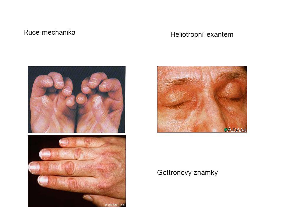 Ruce mechanika Heliotropní exantem Gottronovy známky