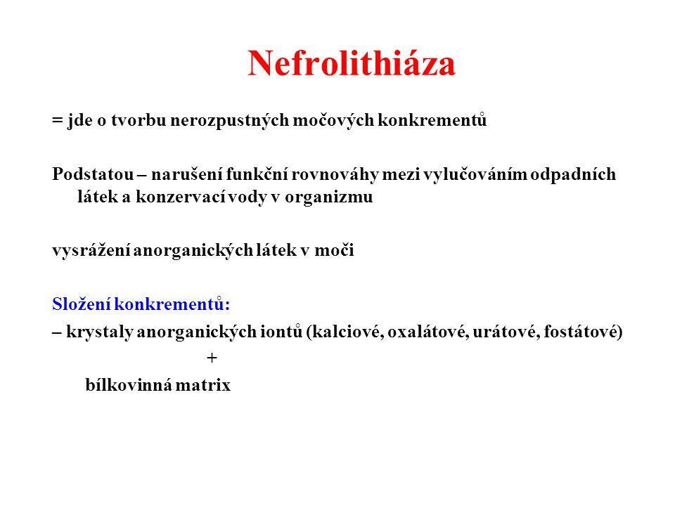 Nefrolithiáza = jde o tvorbu nerozpustných močových konkrementů