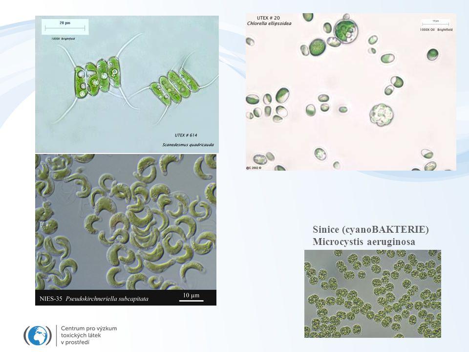 Sinice (cyanoBAKTERIE) Microcystis aeruginosa