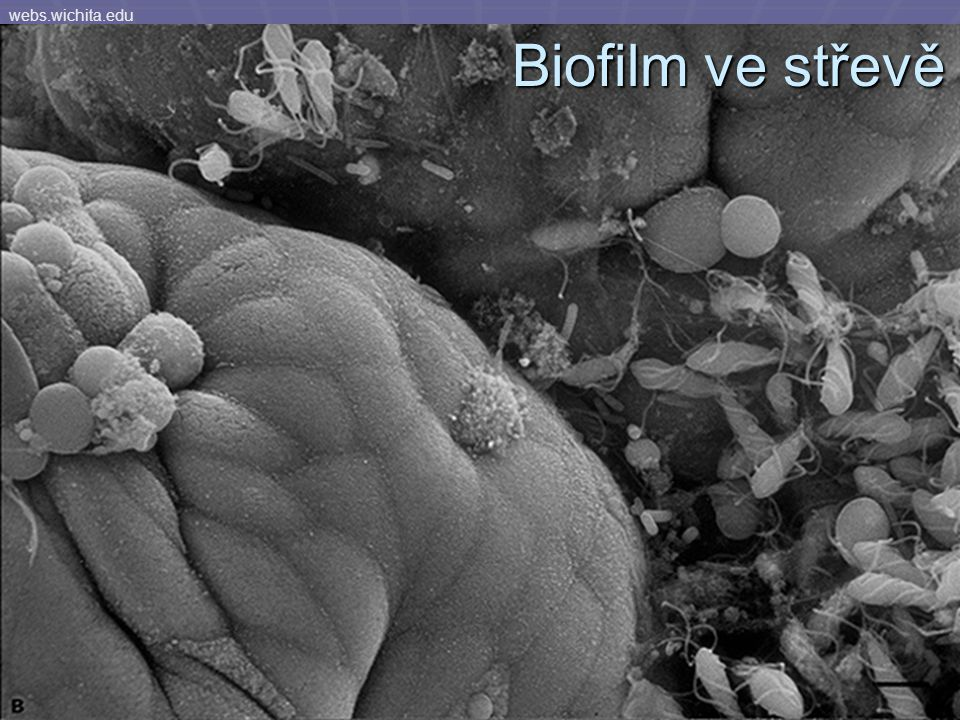 webs.wichita.edu Biofilm ve střevě