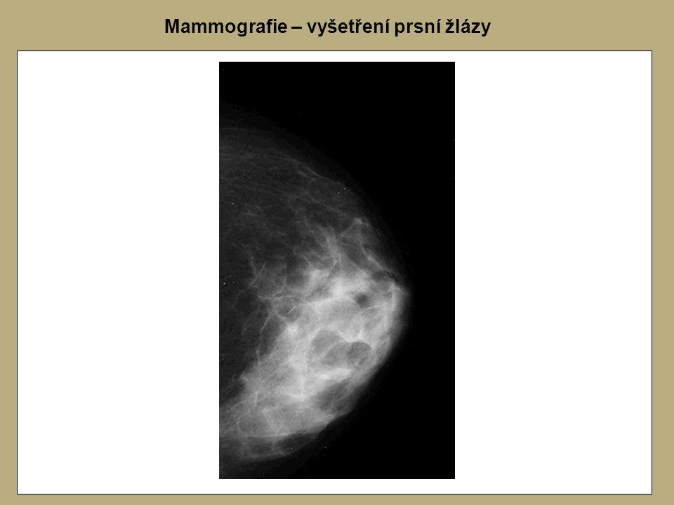 Mammografie – vyšetření prsní žlázy