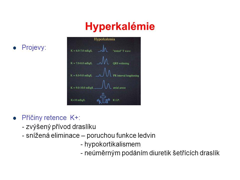 Hyperkalémie Projevy: Příčiny retence K+: - zvýšený přívod draslíku