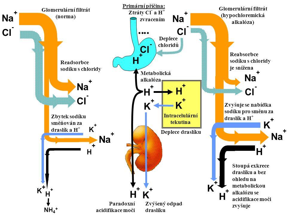 ¨¨ Na+ Cl- K+ H+ NH4+ Paradoxní acidifikace moči Deplece draslíku