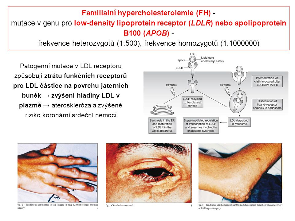 Familialní hypercholesterolemie (FH) -