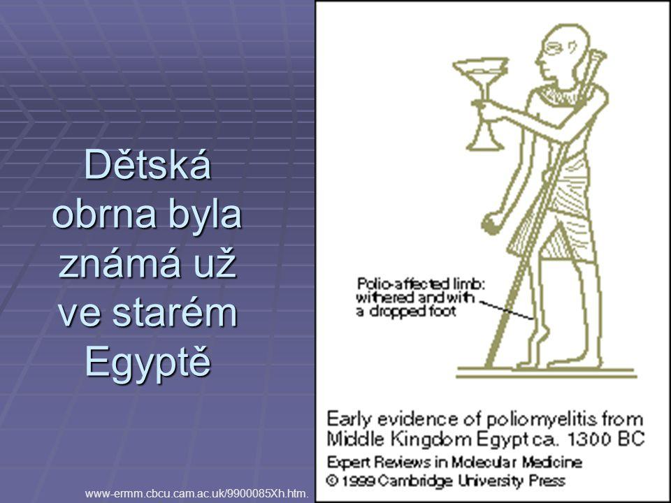 Dětská obrna byla známá už ve starém Egyptě