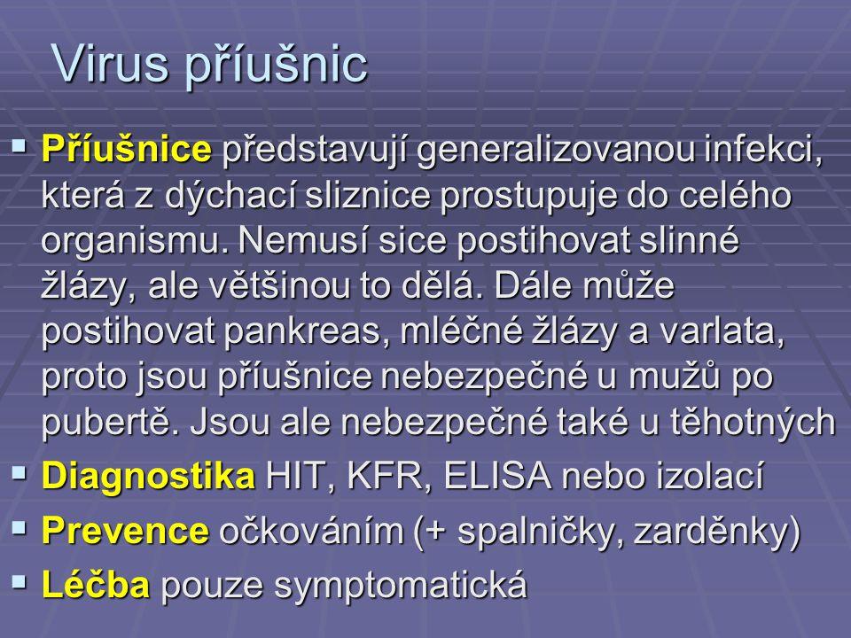 Virus příušnic