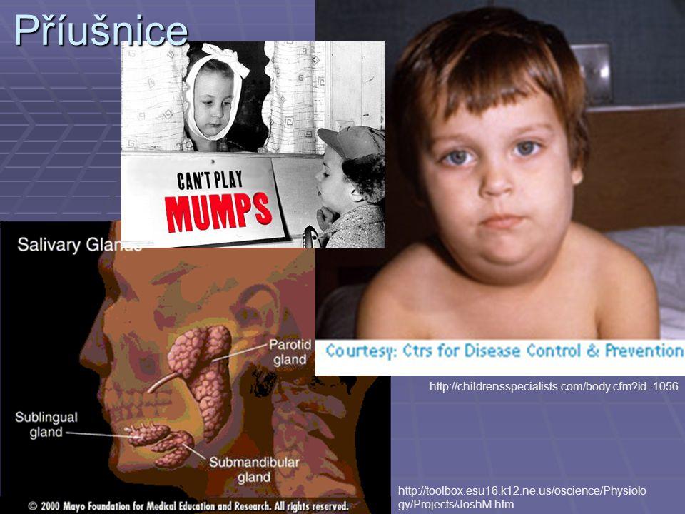 Příušnice http://childrensspecialists.com/body.cfm id=1056