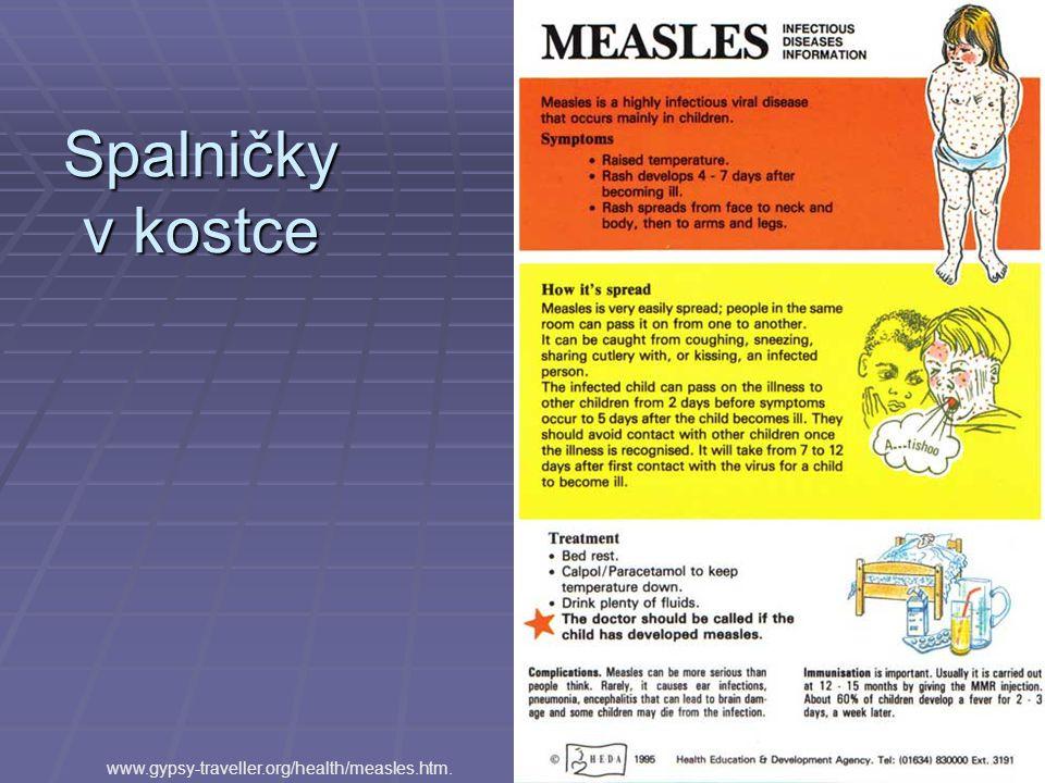 Spalničky v kostce www.gypsy-traveller.org/health/measles.htm.