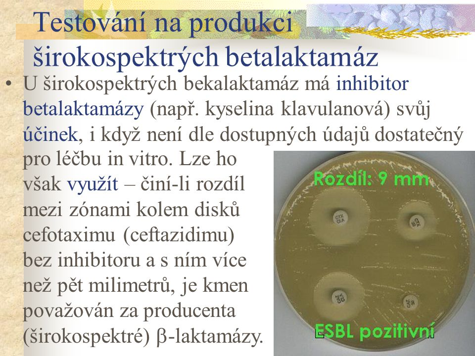 Testování na produkci širokospektrých betalaktamáz