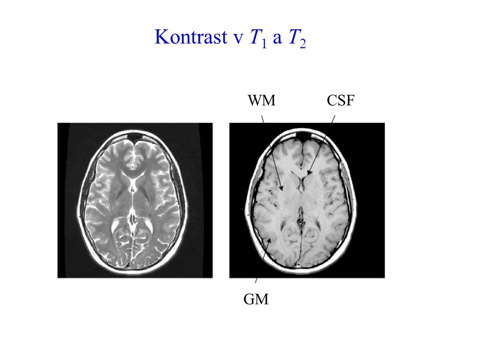 Kontrast v T1 a T2 WM CSF GM