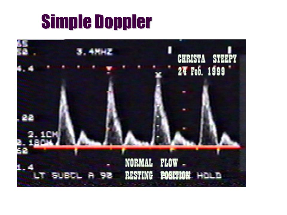 Simple Doppler
