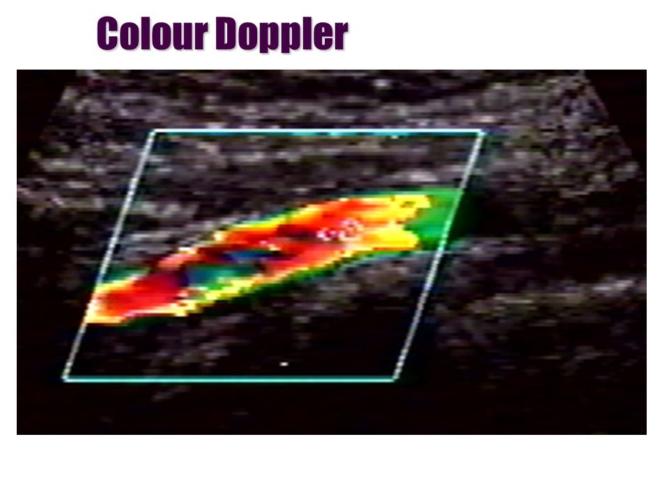 Colour Doppler