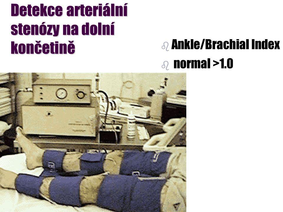 Detekce arteriální stenózy na dolní končetině