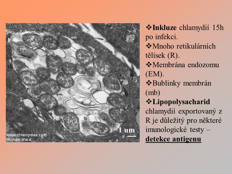 Inkluze chlamydií 15h po infekci.
