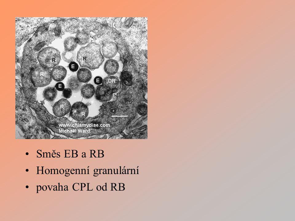 Směs EB a RB Homogenní granulární povaha CPL od RB
