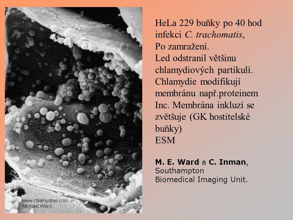 chlamydiových partikulí. Chlamydie modifikují membránu např.proteinem