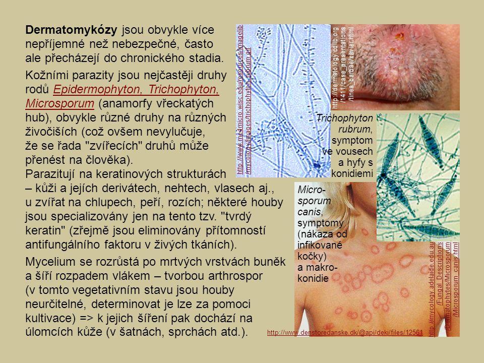 Dermatomykózy jsou obvykle více nepříjemné než nebezpečné, často