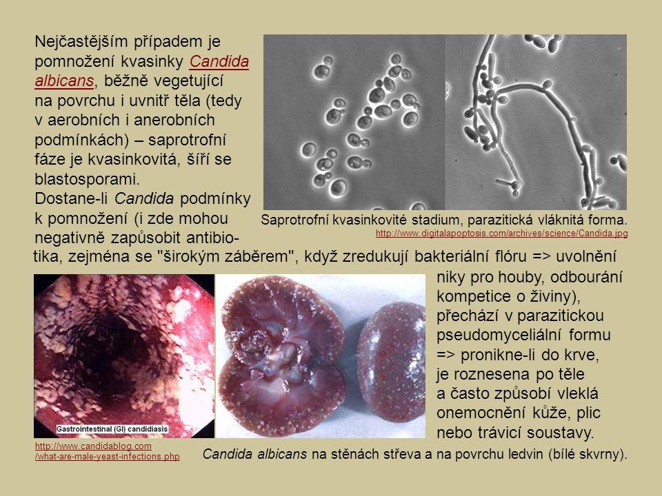 Nejčastějším případem je pomnožení kvasinky Candida albicans, běžně vegetující na povrchu i uvnitř těla (tedy v aerobních i anerobních podmínkách) – saprotrofní fáze je kvasinkovitá, šíří se blastosporami.