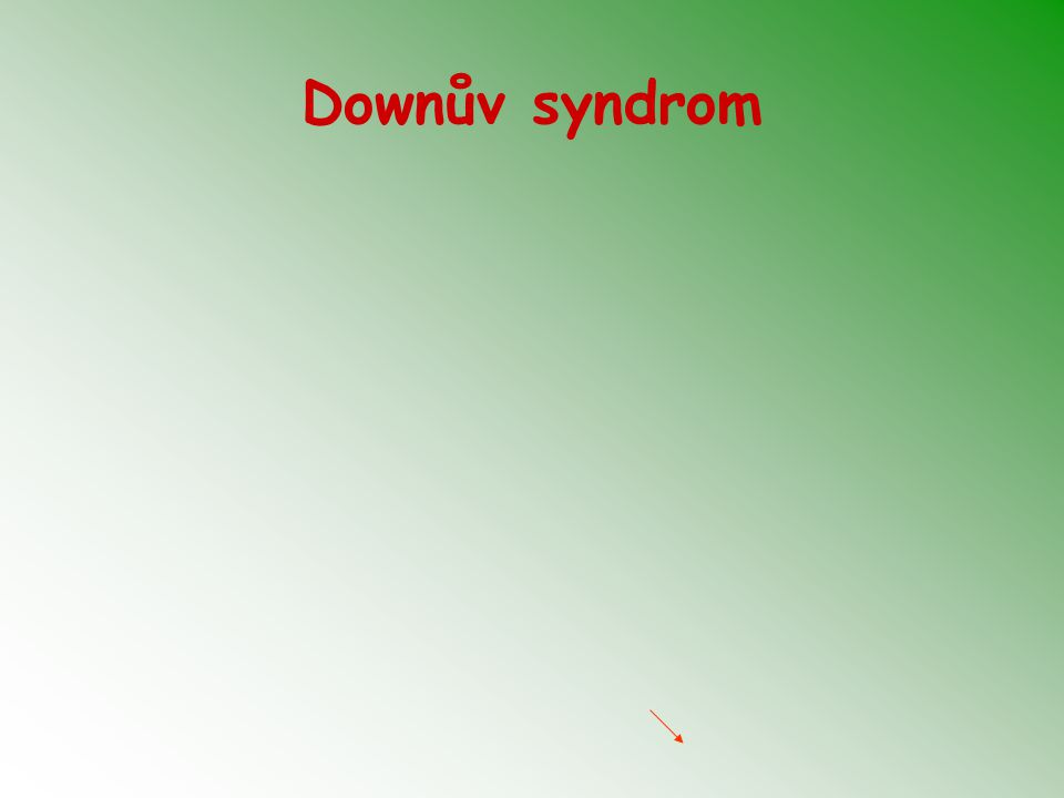 Downův syndrom