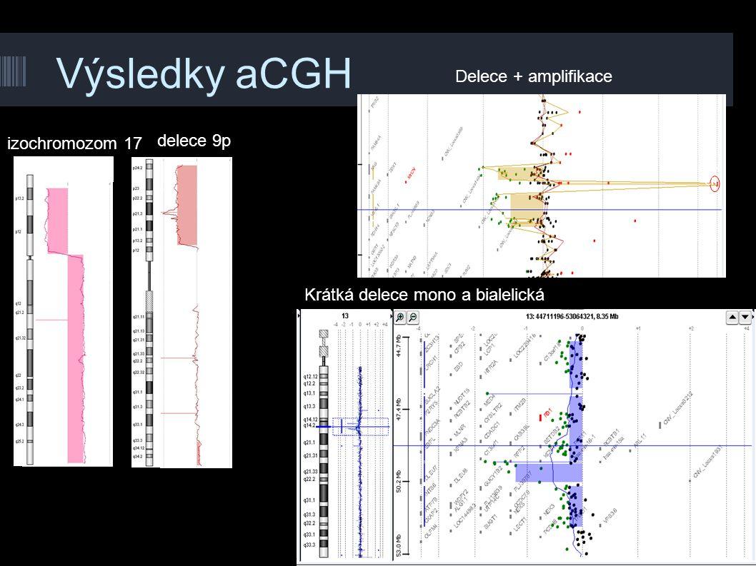 Výsledky aCGH Delece + amplifikace delece 9p izochromozom 17