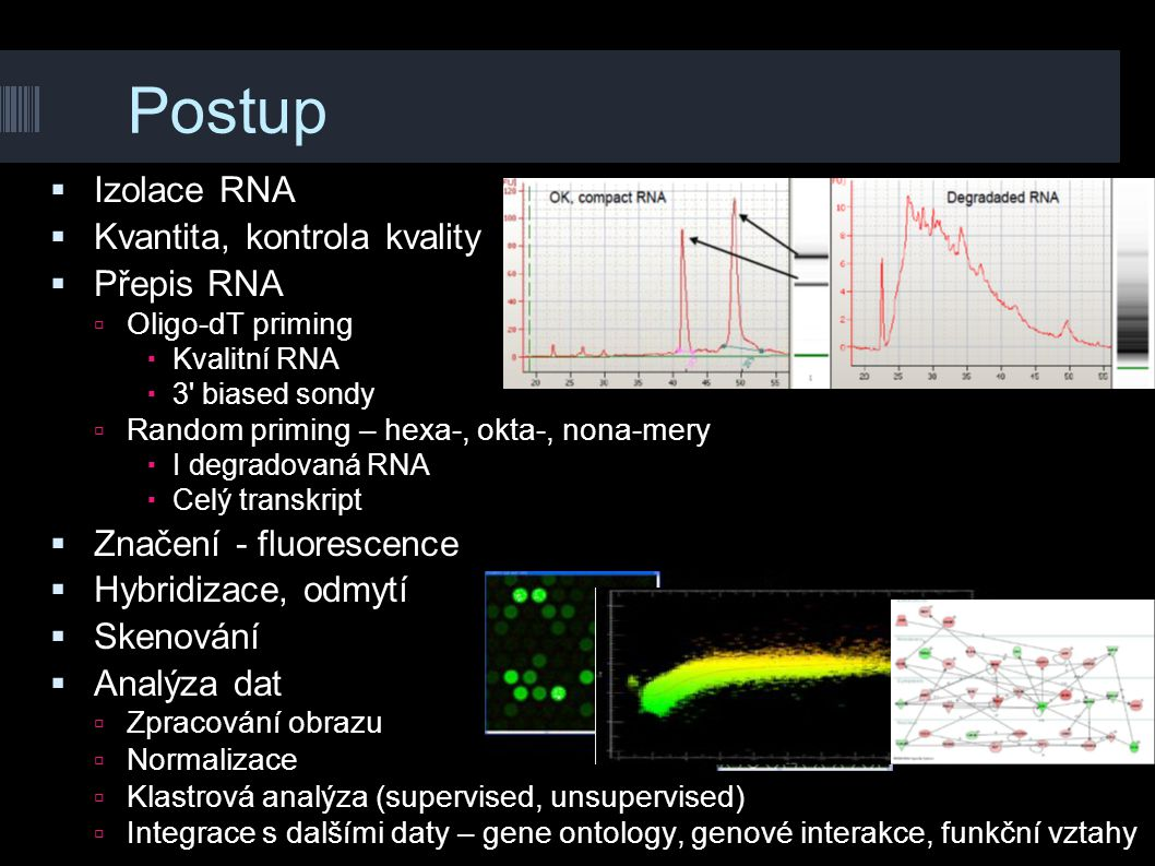 Postup Izolace RNA Kvantita, kontrola kvality Přepis RNA