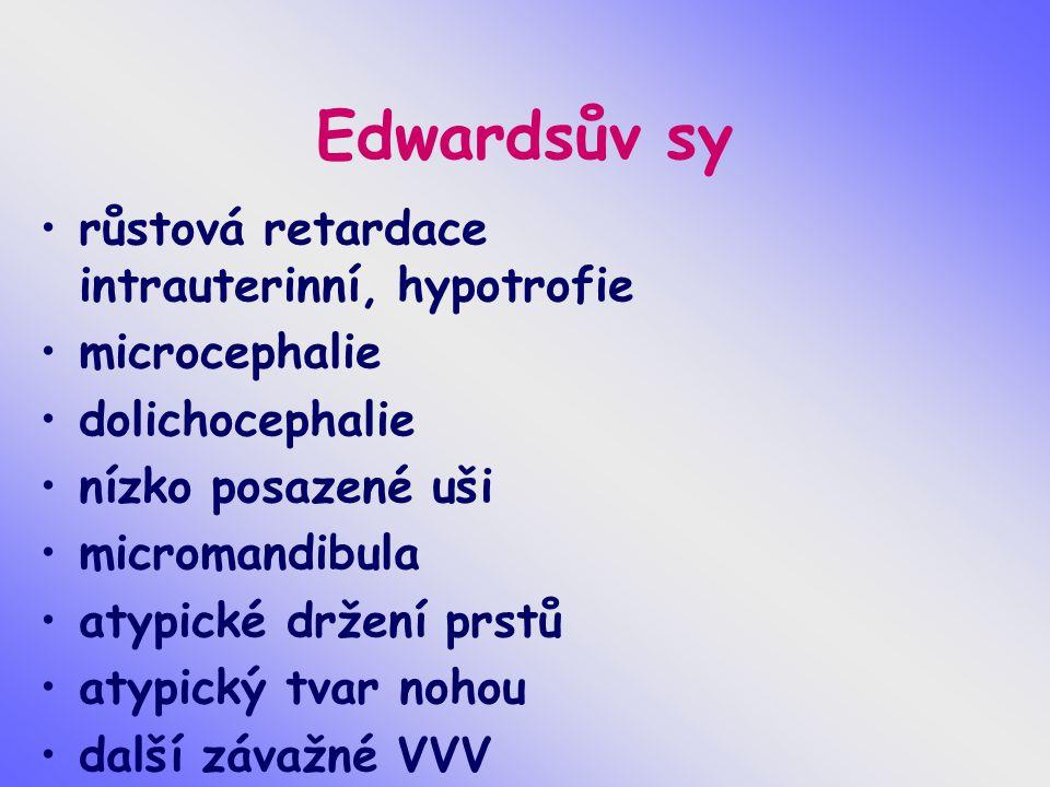 Edwardsův sy růstová retardace intrauterinní, hypotrofie microcephalie