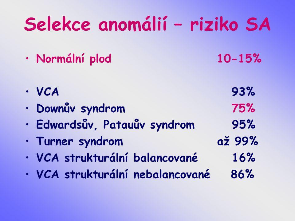 Selekce anomálií – riziko SA