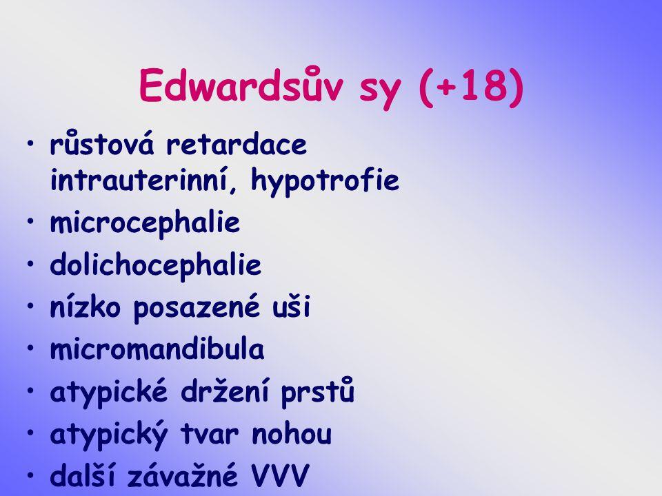Edwardsův sy (+18) růstová retardace intrauterinní, hypotrofie